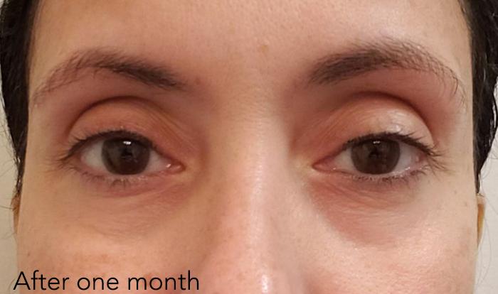 """Người phụ nữ 48 tuổi đã """"là phẳng"""" vùng da mắt thâm nhăn, khiến da mịn đẹp không tỳ vết nhờ loại kem mắt này - Ảnh 3."""