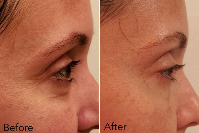 """Người phụ nữ 48 tuổi đã """"là phẳng"""" vùng da mắt thâm nhăn, khiến da mịn đẹp không tỳ vết nhờ loại kem mắt này - Ảnh 4."""