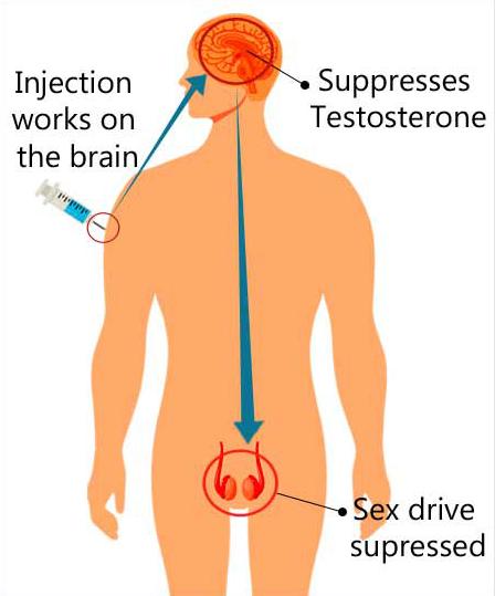 Thiến hóa học là cách thuốc ức chế tình dục để giảm ham muốn, giảm hoạt động tình dục