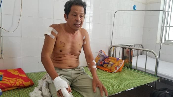 Hai vợ chồng thương binh già bị nhóm thanh niên chém nhập viện - Ảnh 2.