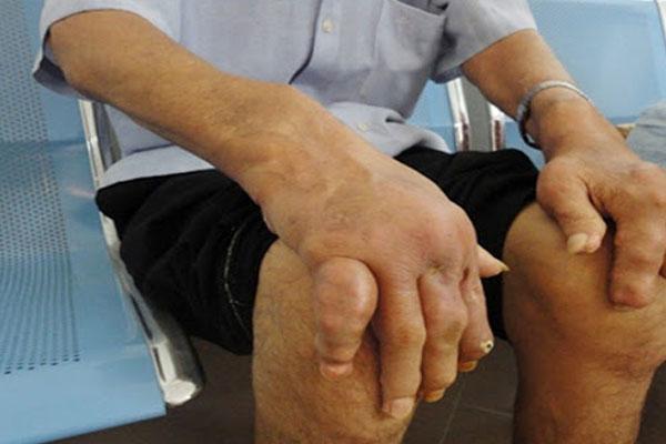 Zbone - sản phẩm hỗ trợ người mắc bệnh xương khớp - Ảnh 2.