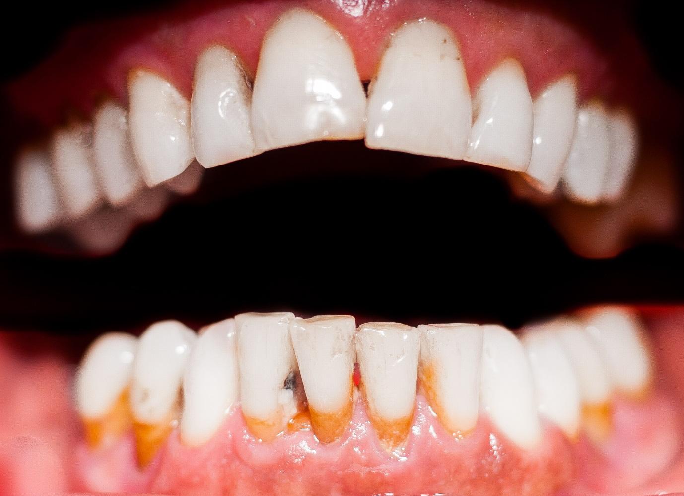 Những bệnh lý răng miệng có thể gây mất răng vĩnh viễn - Ảnh 2.
