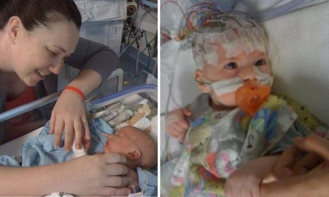 Mẹ bầu chú ý Hội chứng Moebius khiến con bị rối loại thần kinh, toàn bộ cơ mặt không thể cử động từ lúc mới sinh - Ảnh 1.