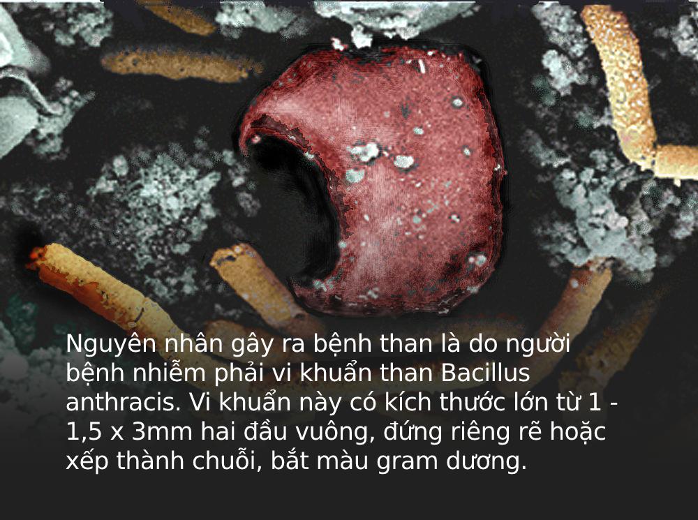 Bệnh than: Căn bệnh lạ gây lở loét da, có thể làm chết người, cần cảnh giác cao trong thời điểm này - Ảnh 1.