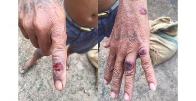 Bệnh than: Căn bệnh lạ gây lở loét da, có thể làm chết người, cần cảnh giác cao trong thời điểm này - Ảnh 5.