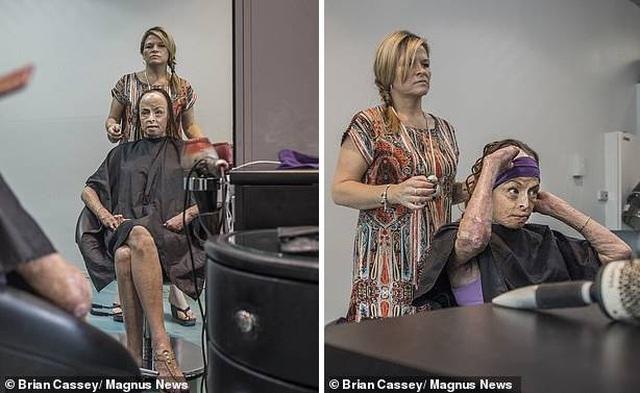Bị bỏng 85% cơ thể sau vụ cháy nhà kinh hoàng, cựu Hoa hậu không ngại khỏa thân chụp ảnh chứng minh nghị lực sống phi thường - Ảnh 3.