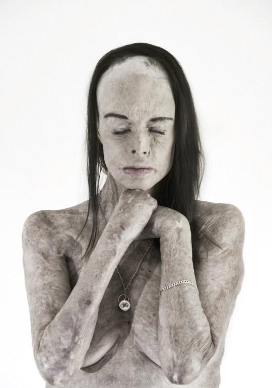 Bị bỏng 85% cơ thể sau vụ cháy nhà, cựu Hoa hậu trở lại với bộ ảnh nghệ thuật chứng tỏ nghị lực sống phi thường trong 20 năm qua - Ảnh 3.
