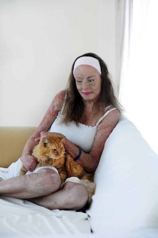 Bị bỏng 85% cơ thể sau vụ cháy nhà, cựu Hoa hậu trở lại với bộ ảnh nghệ thuật chứng tỏ nghị lực sống phi thường trong 20 năm qua - Ảnh 4.