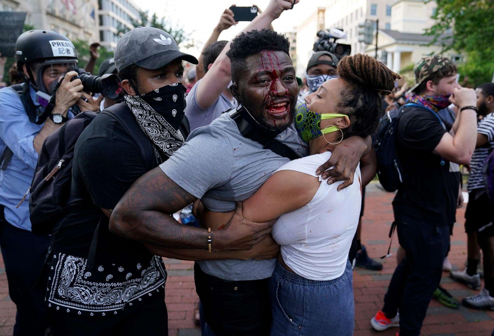 """Chùm ảnh: Toàn cảnh nước Mỹ """"đảo điên"""" sau ngày một người đàn ông bị cảnh sát ghì cổ đến chết - Ảnh 23."""