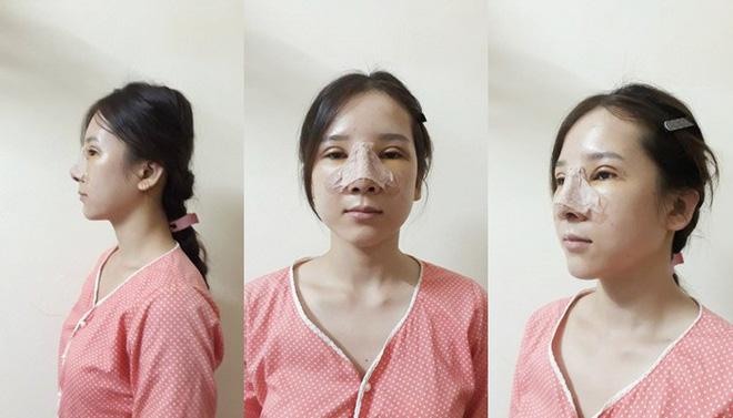 """Cô gái dân tộc từng bị miệt thị bởi """"ti hí mắt lươn"""" sau 3 năm dao kéo đổi đời: Ngày càng xinh đẹp như búp bê, vừa kết hôn với chồng bác sĩ - Ảnh 4."""