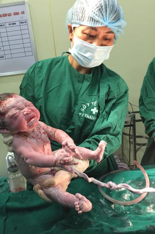 Sản phụ bị dây rốn thắt nút, đi khám thai được phát hiện mổ cấp cấp cứu kịp thời - Ảnh 3.