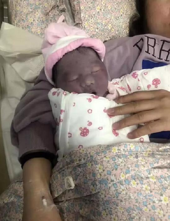 """Mẹ nghẹn ngào muốn khóc khi con gái mới sinh trông như """"củ khoai môn"""", 3 tháng sau nhìn con mà cô mãn nguyện cười nở hoa - Ảnh 2."""