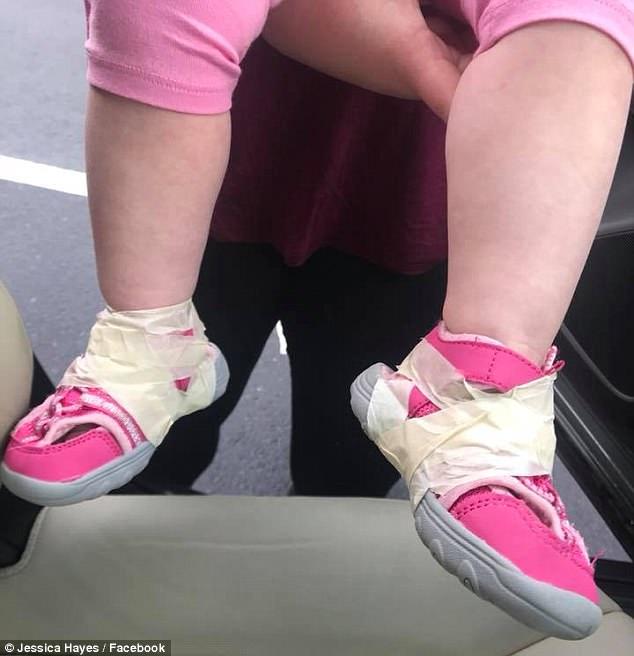 Chiều đến đón con ở nhà trẻ, bà mẹ kinh hoàng khi nhìn xuống bàn chân của con - Ảnh 1.