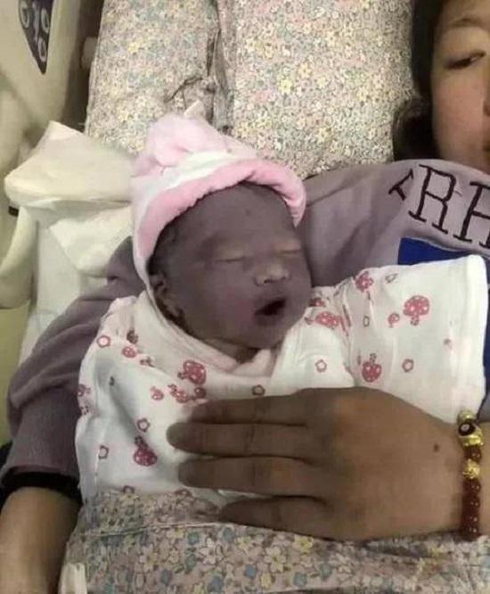 """Mẹ nghẹn ngào muốn khóc khi con gái mới sinh trông như """"củ khoai môn"""", 3 tháng sau nhìn con mà cô mãn nguyện cười nở hoa - Ảnh 1."""