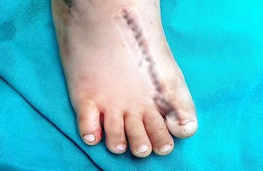 Kỳ lạ một bé trai có tới 9 ngón chân - Ảnh 2.