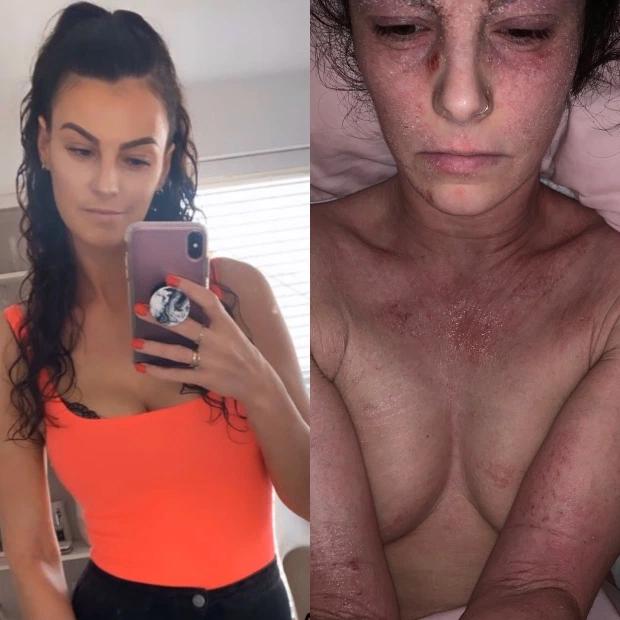 Da tróc lở, bật máu vì bệnh chàm, người phụ nữ tạo nên bất ngờ lớn nhờ dũng cảm tắm 2 lần một tuần và từ bỏ một loại thuốc - Ảnh 2.