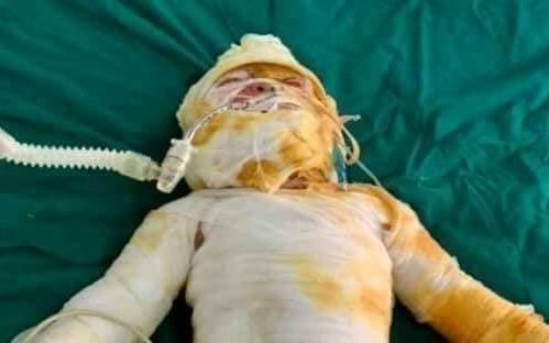 Vụ cháy phòng ngủ lúc rạng sáng khiến chồng chết, vợ và 2 con nguy kịch: Cháu bé 9 tháng tuổi đã tử vong