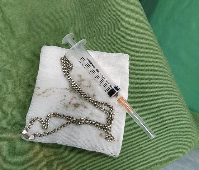 Bé 29 tháng tuổi phải nhập viện vì nuốt phải sợi dây chuyền bạc nằm sâu trong tá tràng - Ảnh 1.