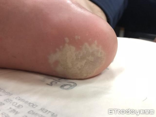 Mẹ phàn nàn con trai có bàn chân bốc mùi cá ươn, đến bệnh viện khám mới biết mắc bệnh này - Ảnh 1.