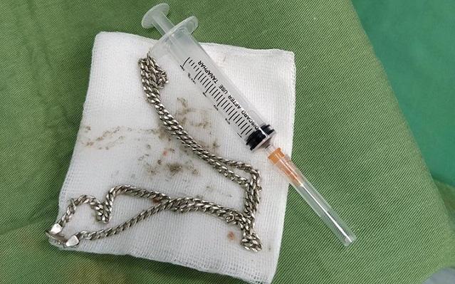Nghệ An: Sợi dây chuyền bạc nằm trong bụng bé gái 29 tháng tuổi