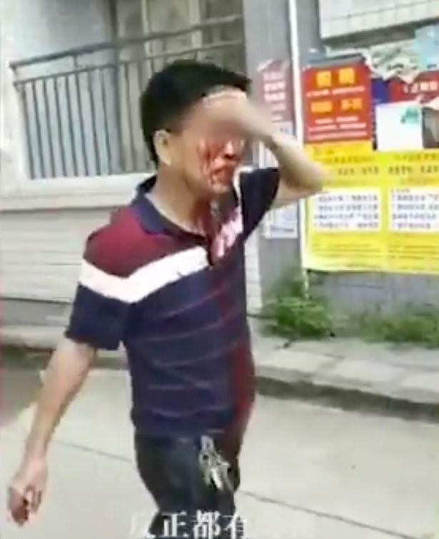 Bảo vệ đột nhiên dùng dao tấn công điên cuồng trong trường học khiến 40 người bị thương, phụ huynh học sinh nháo nhào đến đón con em về - Ảnh 3.