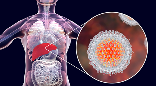 Cứ 6 người bị ung thư thì có 1 người do viêm gây ra, tuyệt đối đừng chủ quan nếu thấy 3 cơ quan này bị viêm - Ảnh 2.