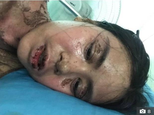 Hình ảnh cô gái bị dị ứng ibuprofen nghiêm trọng khiến nhiều người phải khiếp sợ - Ảnh 4.
