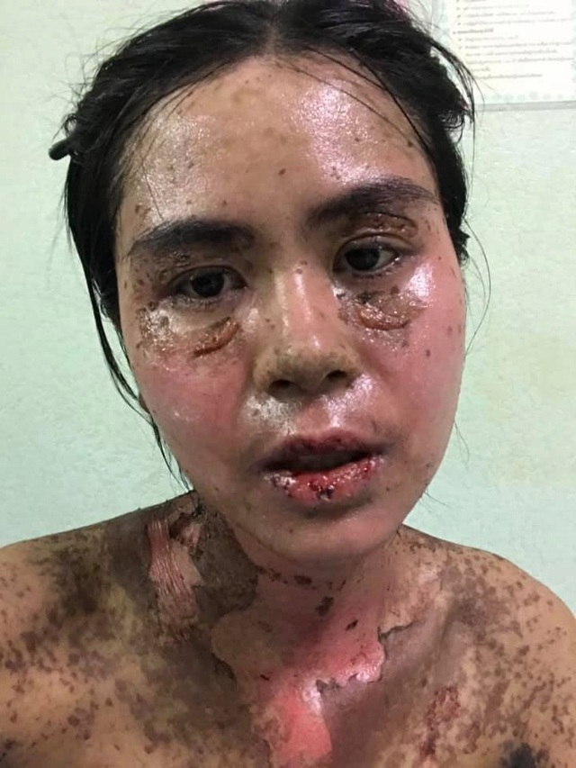 Hình ảnh cô gái bị dị ứng ibuprofen nghiêm trọng khiến nhiều người phải khiếp sợ - Ảnh 2.