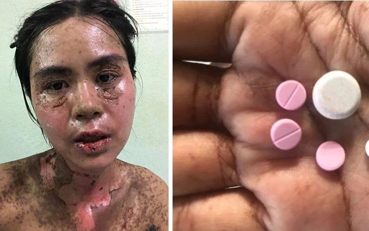 Sốc với hình ảnh cô gái bị dị ứng toàn thân, mặt biến dạng do dùng thuốc chữa đau răng khiến nhiều người thấy sợ