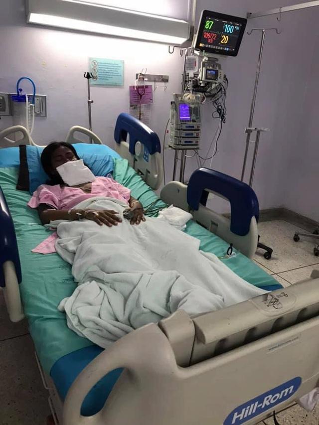 Hình ảnh cô gái bị dị ứng ibuprofen nghiêm trọng khiến nhiều người phải khiếp sợ - Ảnh 5.