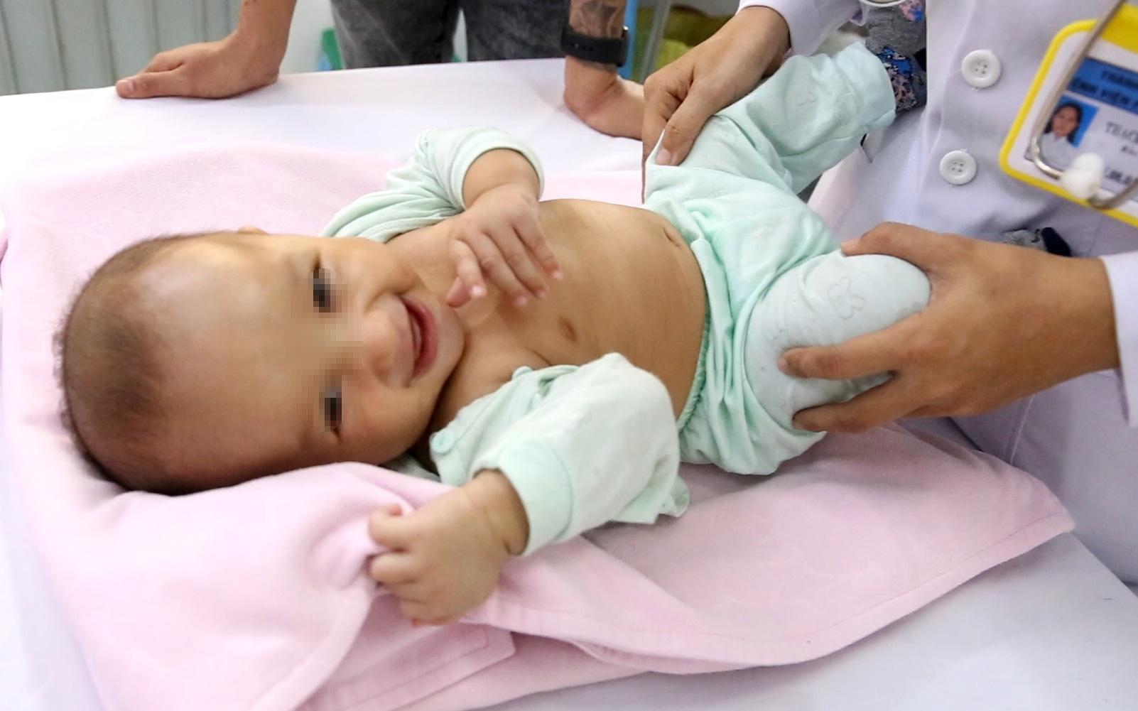 Bác sĩ Cần Thơ kịp thời phát hiện 1 trẻ sơ sinh mắc phải căn bệnh nếu chẩn đoán chậm trẻ sẽ vĩnh viễn bị thiểu năng trí tuệ