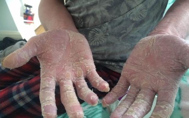 Da tay bong tróc từng mảng, cứ tưởng do phát ban bình thường, ai ngờ lại là dấu hiệu của bệnh ung thư