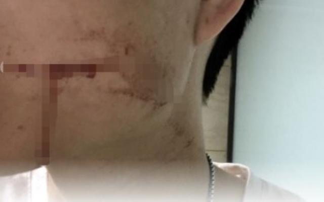 Chàng trai 26 tuổi tử vong sau khi nhổ răng khôn và chảy máu liên tiếp 10 ngày - Ảnh 2.