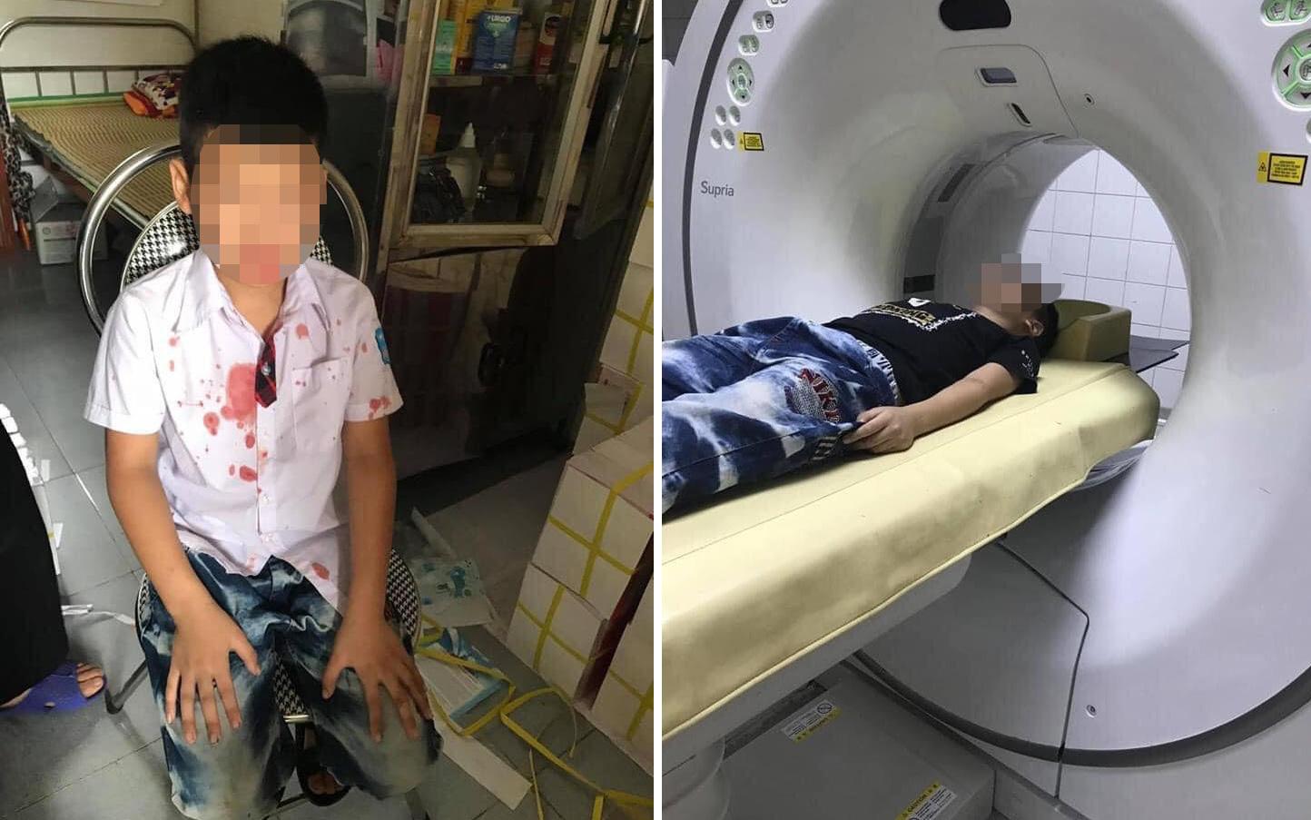 Xôn xao thông tin bé trai tiểu học bị phụ huynh cùng lớp ''bắt cóc'' ra ngoài, đánh chảy máu miệng vì trót giật mũ của bạn