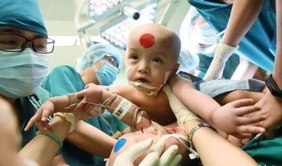 Video cận cảnh quá trình gây mê phẫu thuật tách rời cặp song sinh dính liền - Ảnh 2.