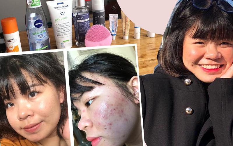 Chỉ dùng 1 tuýp kem do bác sĩ kê và tự tìm hiểu các sản phẩm skincare, nàng du học sinh tìm lại được làn da căng láng không thâm mụn