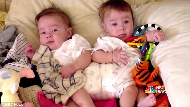 2 bé gái sinh đôi dính liền, cha mẹ mất 7 tháng mới đưa ra quyết định tách rời các con, 17 năm sau ai cũng gật đầu mãn nguyện khi nhìn thấy nụ cười trên khuôn mặt các em - Ảnh 4.