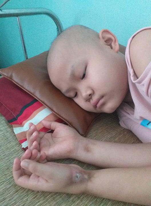 """Khẩn cầu của bé gái 9 tuổi bị cắt bỏ chân vì căn bệnh hiểm nghèo: """"Cháu muốn giữ chân còn lại để tiếp tục đến trường"""" - Ảnh 3."""