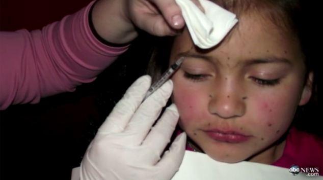 Số phận của bé gái sau 9 năm bị mẹ bắt tiêm chất làm đầy khắp khuôn mặt và tẩy lông toàn thân để tham dự các cuộc thi sắc đẹp - Ảnh 2.