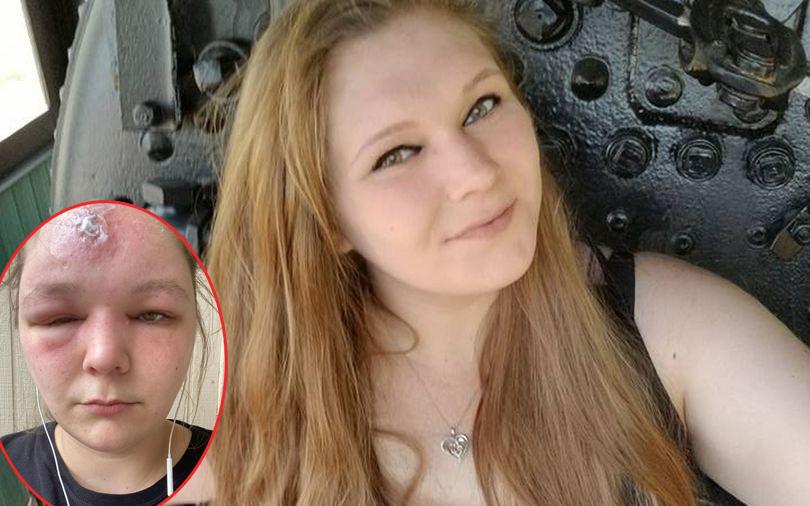 Bị ngộ độc ánh nắng sau 2 giờ ở ngoài trời, cô gái 25 tuổi đã dũng cảm ''trưng bày'' khuôn mặt biến dạng của mình để... mau khỏi