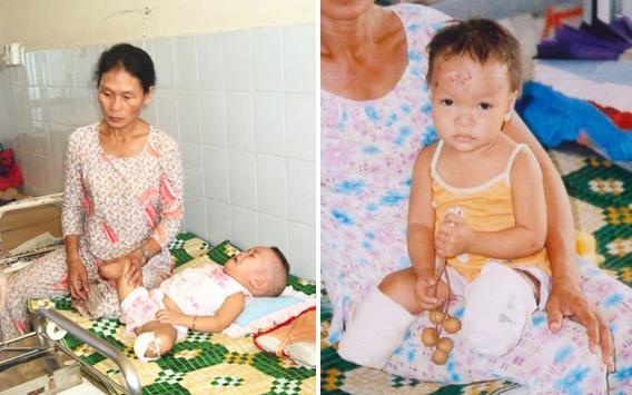 Sau 17 năm được nhận nuôi ở Mỹ, cuộc sống hiện tại của bé gái Việt mất 2 chân sau vụ nổ thương tâm khiến ai cũng phải ngạc nhiên