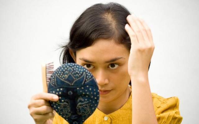 Đến Lisa (Black Pink) hay Yoona cũng không tránh được tóc rụng, lộ cả mảng da đầu: Đây là 3 lọ serum giúp tóc mọc nhanh gấp 5 lần được chuyên gia chỉ đích danh - Ảnh 3.