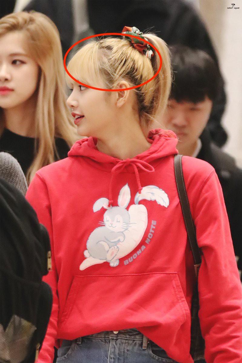 Đến Lisa (Black Pink) hay Yoona cũng không tránh được tóc rụng, lộ cả mảng da đầu: Đây là 3 lọ serum giúp tóc mọc nhanh gấp 5 lần được chuyên gia chỉ đích danh - Ảnh 1.
