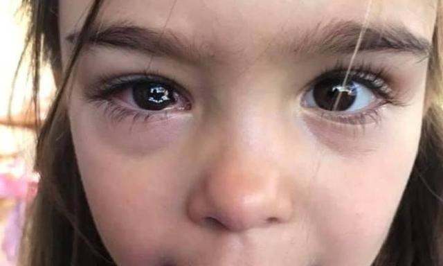 Đưa con đi khám vì bị bạn ném đá trúng mắt, bà mẹ hốt hoảng khi đột nhiên căn phòng đầy ắp bác sĩ và y tá vây quanh con - Ảnh 1.