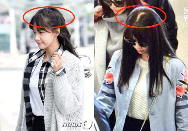 Đến Lisa (Black Pink) hay Yoona cũng không tránh được tóc rụng, lộ cả mảng da đầu: Đây là 3 lọ serum giúp tóc mọc nhanh gấp 5 lần được chuyên gia chỉ đích danh - Ảnh 2.