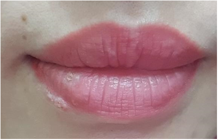 Người phụ nữ  nhiễm Herpes sau phun xăm môi với tổn thương dát đỏ vùng cẳng bàn tay 2 bên - Ảnh 1.