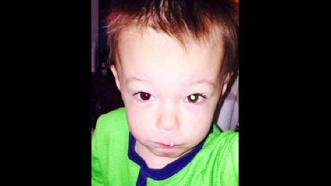 Một bà mẹ cảnh giác khi nhìn vào bức ảnh của con trai, một người làm móng từ chối làm móng tay cho khách... và họ phát hiện ra bệnh ung thư: Đừng bao giờ bỏ qua biểu hiện dù nhỏ này - Ảnh 1.