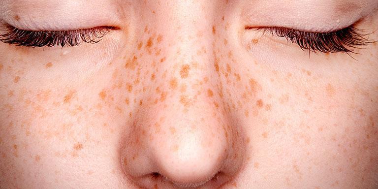 Đừng ngược đãi làn da - Hãy bảo vệ da bằng cách bôi kem chống nắng ngay từ hôm nay - Ảnh 2.