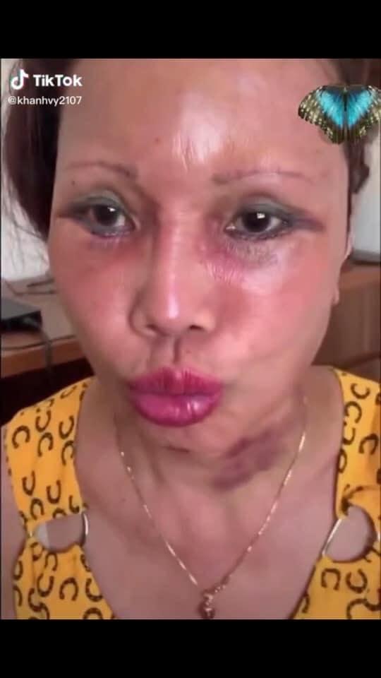 Cô dâu 63 tuổi Cao Bằng mặt băng kín mít, miệng méo xệch ngồi cạnh chồng trẻ khiến dân mạng vừa giận vừa thương - Ảnh 1.