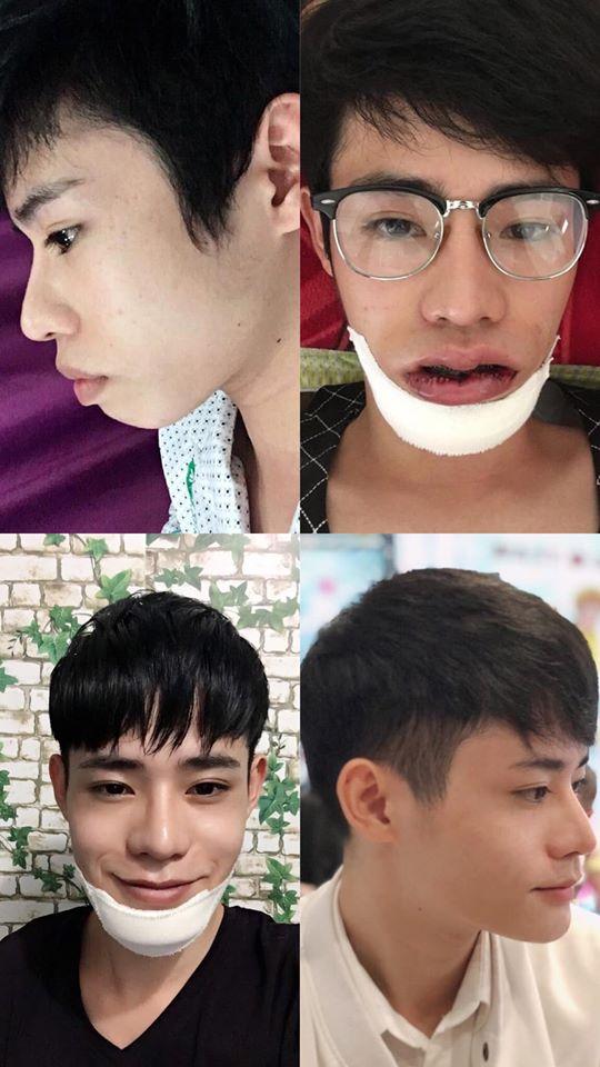 Giấu gia đình đi phẫu thuật thẩm mỹ 4 lần, chàng trai được khen giống idol Hàn Quốc nhưng chi phí phẫu thuật mới là điều đáng trầm trồ nhất - Ảnh 4.